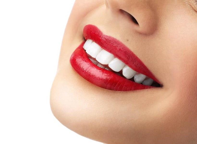 Cara Memutihkan Gigi Secara Alami Tanpa Harus ke Dokter